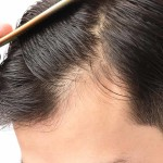 hair-loss-balding-thinning-natural-remedies